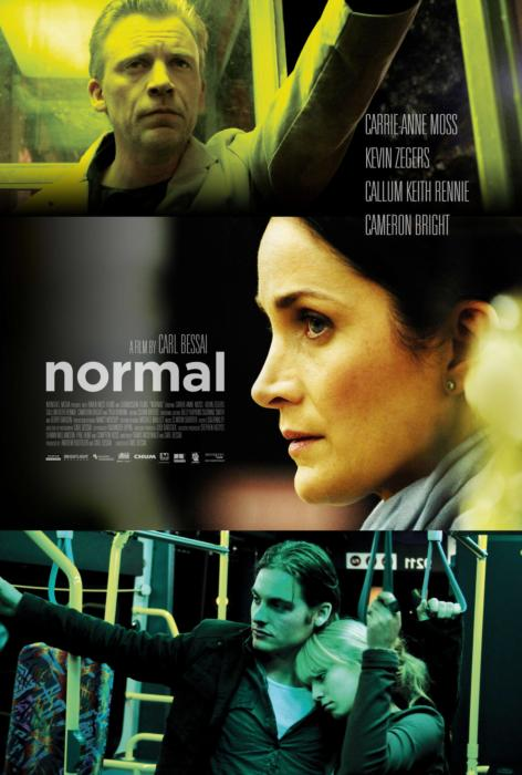 Normal-spb4728447