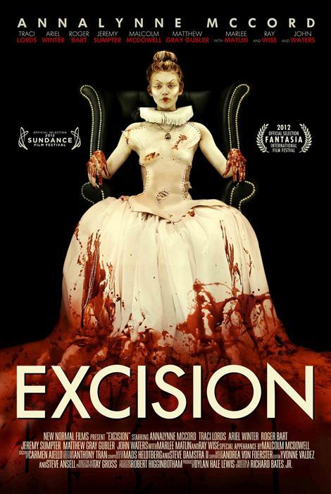 Excision-spb5182183